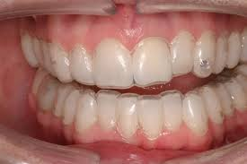 tẩy trắng răng
