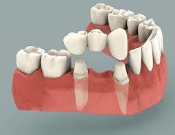Phương pháp cầu răng