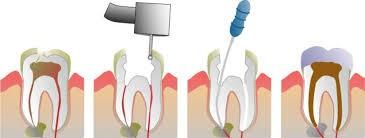 Lấy tuỷ răng