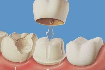 Mão răng cối
