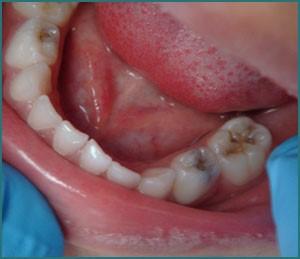 Trám răng sữa